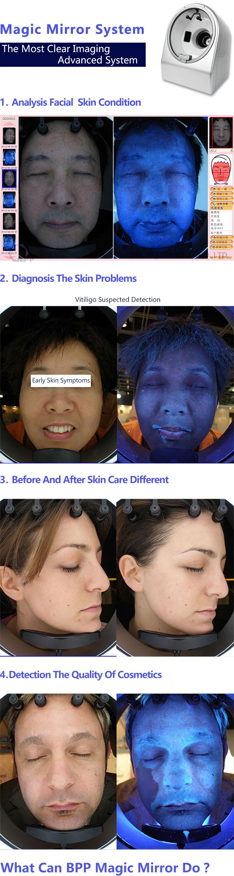 Skin Analysis Machine Description 1