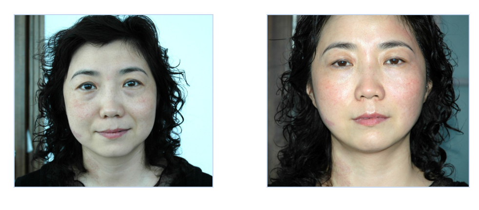 Thermage Machine Treatment Before and After