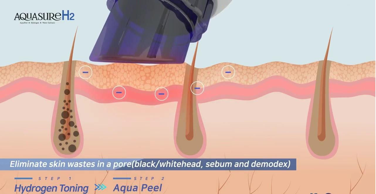 Aquasure H2 Machine Spiral Peeling