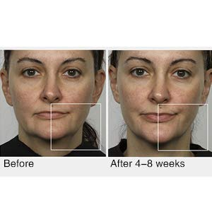 Radio Frequency Skin Tightening Machine Treatment Before and After