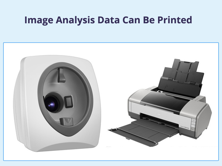 Skin Analysis Machine Data Print