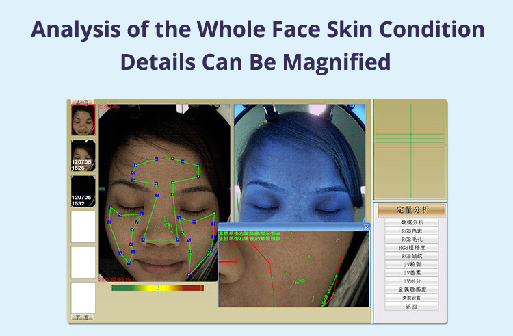 Skin Analysis Machine Details Magnified