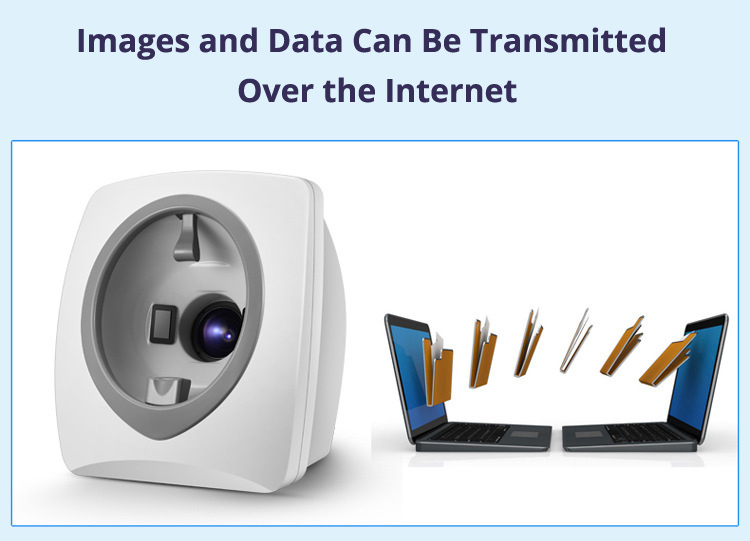 Skin Analysis Machine Internet Transfer Data
