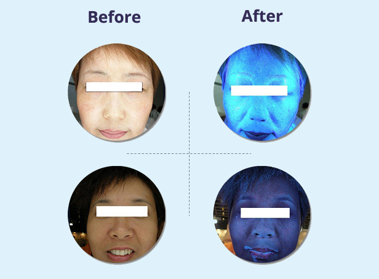 Skin Analysis Machine Scan Before After