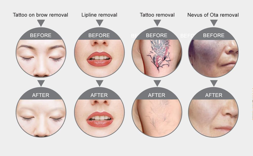 Q Switched Nd Yag Laser Tattoo Removal Machine Treatment Before and After