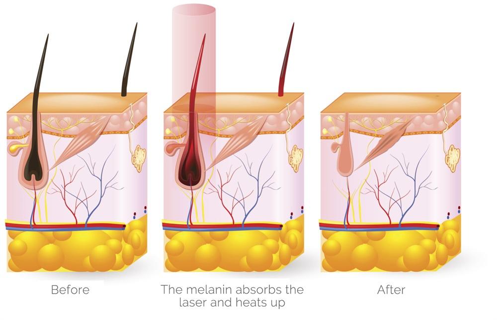laser hair removal principle