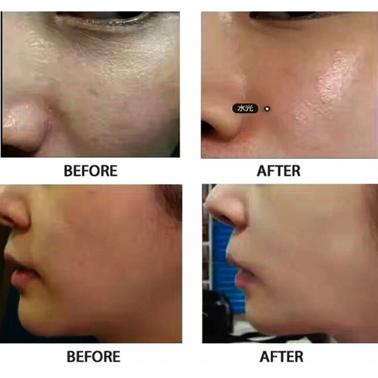Laser Peel Treatment Before and After